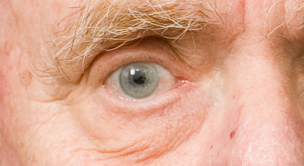 Glaucoma – back to the basics